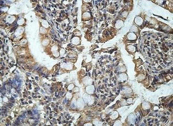 Immunohistochemistry (Formalin/PFA-fixed paraffin-embedded sections) - Anti-CD151 antibody (ab201174)