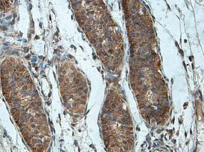 Immunohistochemistry (Formalin/PFA-fixed paraffin-embedded sections) - Anti-DIAPH2/DIA antibody (ab201205)