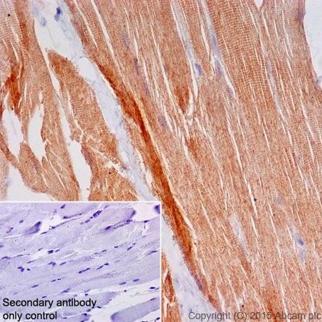 Immunohistochemistry (Formalin/PFA-fixed paraffin-embedded sections) - Anti-MYOM1 antibody [EPR17322] (ab201228)