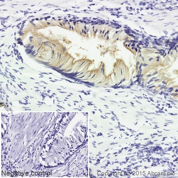 Immunohistochemistry (Formalin/PFA-fixed paraffin-embedded sections) - Anti-PSMA antibody [EPR6253] (Biotin) (ab201253)