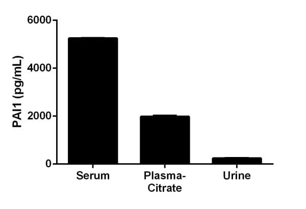 Interpolated Concentration of PAI1 in rat serum, plasma-citrate, and urine.
