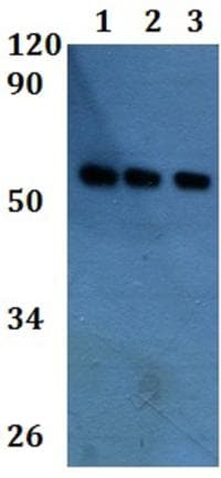 Western blot - Anti-SH2D4A antibody (ab201289)