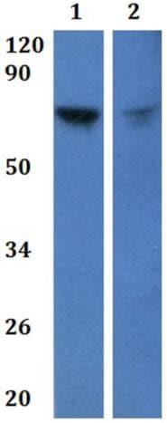 Western blot - Anti-SLC6A16 antibody (ab201294)