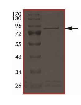 SDS-PAGE - Recombinant Human NPR-B protein (ab201371)