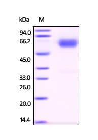SDS-PAGE - Recombinant Human Fetuin B protein (ab201420)