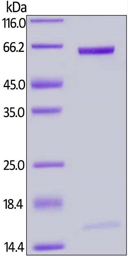 SDS-PAGE - Recombinant Rat PCSK9 protein (ab201424)