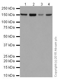 Western blot - Anti-FANCA/FAA antibody [EPR16519] (ab201457)