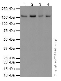 Western blot - Anti-FANCA/FAA antibody [EPR16519-42] (ab201458)