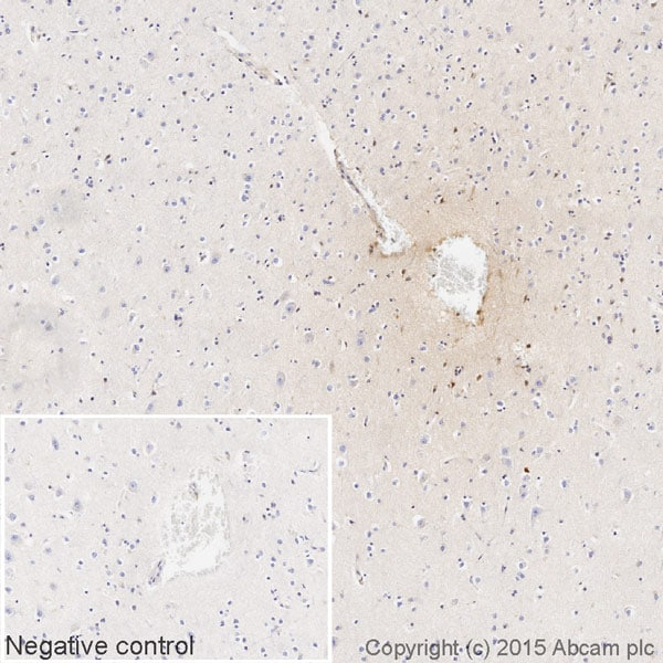 Immunohistochemistry (Formalin/PFA-fixed paraffin-embedded sections) - Rabbit monoclonal [H19-5] Anti-Human kappa light chain (Biotin) (ab201484)