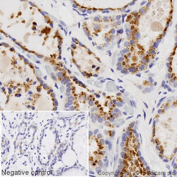 Immunohistochemistry (Formalin/PFA-fixed paraffin-embedded sections) - Biotin Anti-GBA antibody [EPR5142] (ab201496)