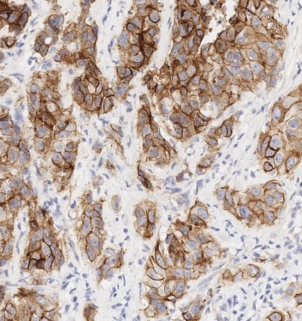 Immunohistochemistry (Formalin/PFA-fixed paraffin-embedded sections) - Anti-E Cadherin antibody [EP700Y] - Low endotoxin, Azide free (ab201499)