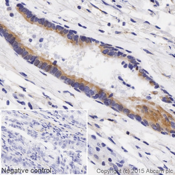 Immunohistochemistry (Formalin/PFA-fixed paraffin-embedded sections) - Anti-Lumican antibody [EPR8898(2)] (Biotin) (ab201502)
