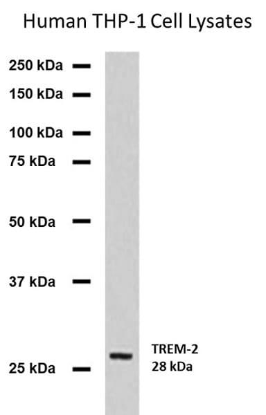 Western blot - Anti-TREM2 antibody [MM0942-42E14] (ab201621)