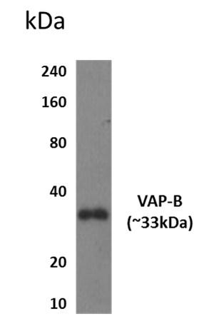 Western blot - Anti-VAPB antibody [MM0949-33M9] (ab201634)