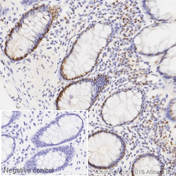 Immunohistochemistry (Formalin/PFA-fixed paraffin-embedded sections) - HRP Anti-PCNA antibody [PC10] (ab201673)