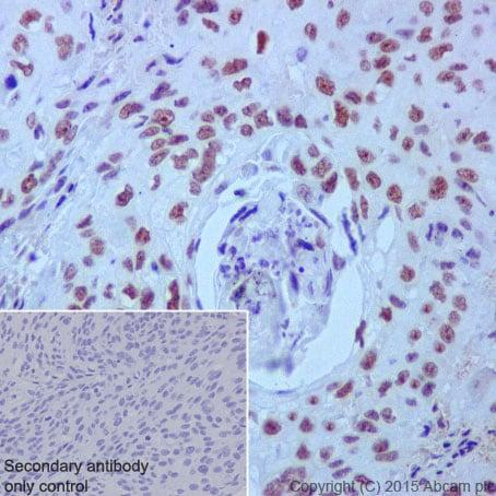 Immunohistochemistry (Formalin/PFA-fixed paraffin-embedded sections) - Anti-PRPF4 antibody [EPR17206(B)] (ab201684)