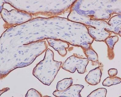 Immunohistochemistry (Formalin/PFA-fixed paraffin-embedded sections) - Anti-5T4 antibody [EPR5529] - BSA and Azide free (ab201711)