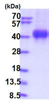 SDS-PAGE - Recombinant Human IL-2RG protein (ab201712)