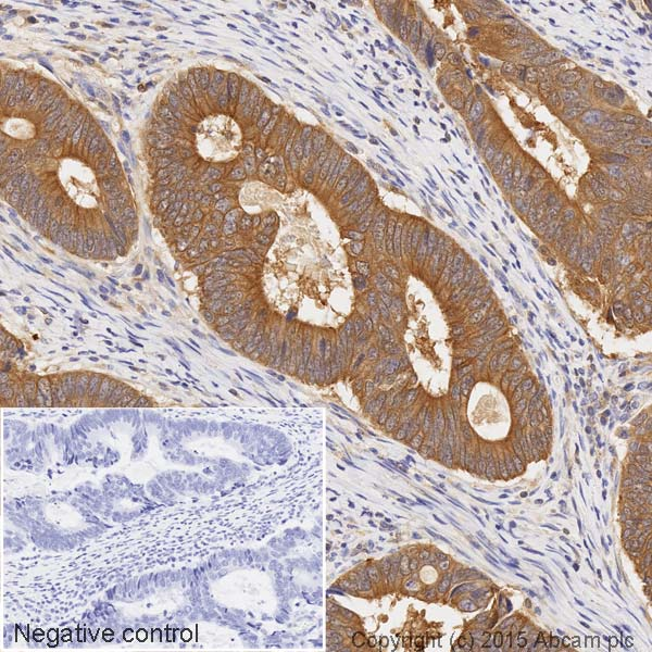 Immunohistochemistry (Formalin/PFA-fixed paraffin-embedded sections) - Anti-Bid antibody [Y8] (HRP) (ab201754)