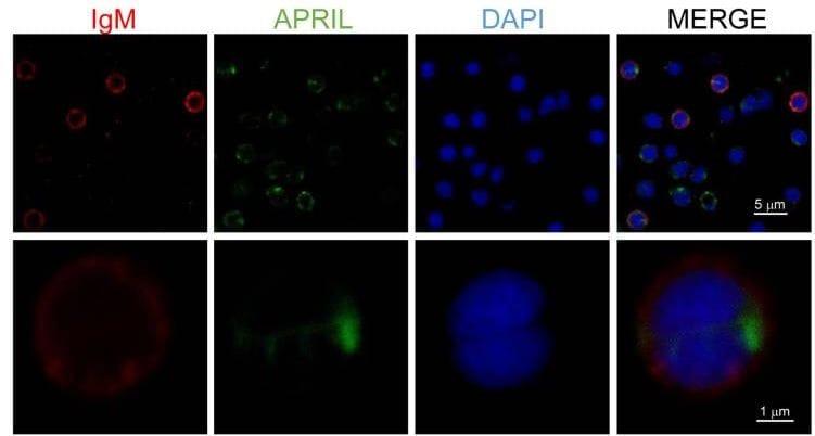 Fluorescence Microscopy - Biotinylation Kit / Biotin Conjugation Kit (Fast, Type A) - Lightning-Link