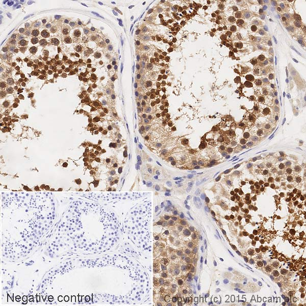 Immunohistochemistry (Formalin/PFA-fixed paraffin-embedded sections) - Anti-GABARAP+GABARAPL1+GABARAPL2 antibody [EPR4805] (HRP) (ab201813)