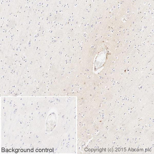 Immunohistochemistry (Formalin/PFA-fixed paraffin-embedded sections) - Anti-Human IgG antibody [EPR12700] (Biotin) (ab201842)