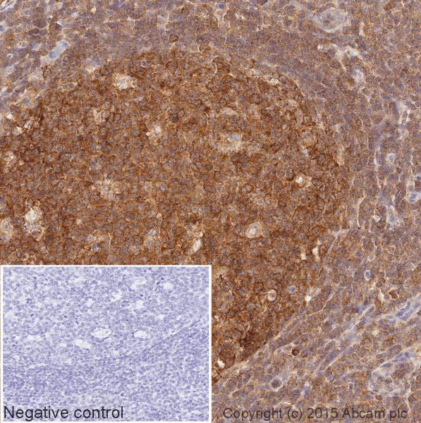 Immunohistochemistry (Formalin/PFA-fixed paraffin-embedded sections) - Anti-Cyclin B1 antibody [V152] (HRP) (ab201853)