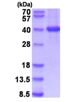 SDS-PAGE - Recombinant Human MKK6 protein (ab201873)
