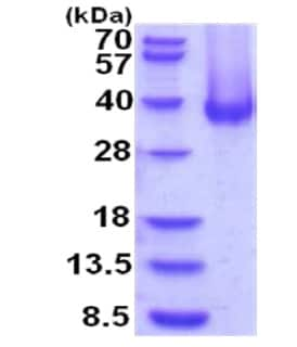 SDS-PAGE - Recombinant Human Carbonic Anhydrase 12/CA12 protein (ab201875)