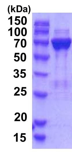 SDS-PAGE - Recombinant Human PGM2 protein (ab201877)