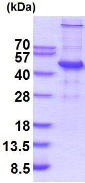 SDS-PAGE - Recombinant Human UBE2Q2 protein (ab201879)