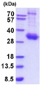 SDS-PAGE - Recombinant Human IL-10RA protein (His tag) (ab201890)