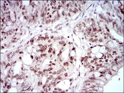 Immunohistochemistry (Formalin/PFA-fixed paraffin-embedded sections) - Anti-HOXB4 antibody [3A2F2] (ab201957)
