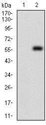 Western blot - Anti-PDK2 antibody [3F2D7] (ab201964)