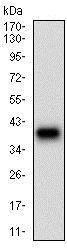 Western blot - Anti-Desmoglein 3/PVA antibody [6G2C11] (ab201968)