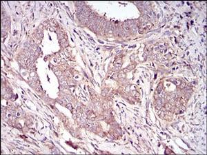 Immunohistochemistry (Formalin/PFA-fixed paraffin-embedded sections) - Anti-Vitronectin/S-Protein antibody [1G11E8] (ab201981)