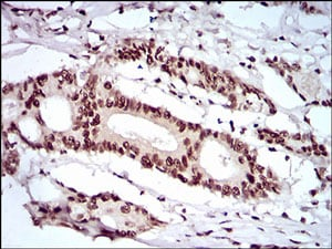 Immunohistochemistry (Formalin/PFA-fixed paraffin-embedded sections) - Anti-SLM-1 antibody [7G8C10] - C-terminal (ab201982)
