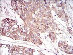 Immunohistochemistry (Formalin/PFA-fixed paraffin-embedded sections) - Anti-AACT antibody [5G3C11] - C-terminal (ab201987)