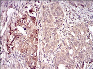 Immunohistochemistry (Formalin/PFA-fixed paraffin-embedded sections) - Anti-Villin antibody [3E5G11] - N-terminal (ab201989)