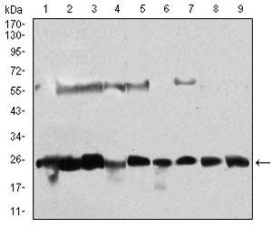 Western blot - Anti-Casein Kinase 2 beta antibody [2F12F3] (ab201990)