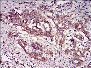 Immunohistochemistry (Formalin/PFA-fixed paraffin-embedded sections) - Anti-Casein Kinase 2 beta antibody [2F12F3] (ab201990)