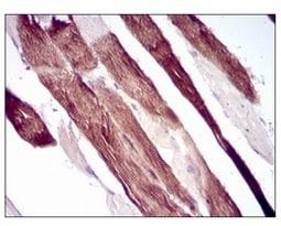 Immunohistochemistry (Formalin/PFA-fixed paraffin-embedded sections) - Anti-Villin antibody [5E3B2] (ab202021)