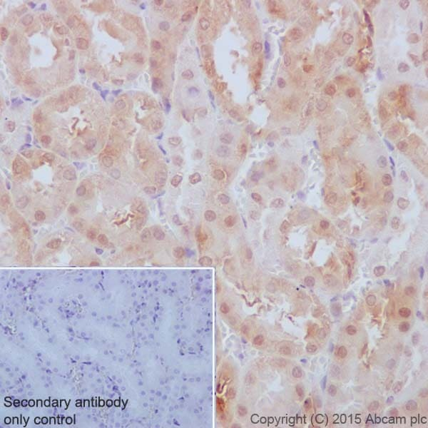 Immunohistochemistry (Formalin/PFA-fixed paraffin-embedded sections) - Anti-p53 DINP1/TP53INP1 antibody [EPR17974] (ab202026)