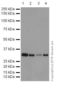 Western blot - Anti-p53 DINP1/TP53INP1 antibody [EPR17974] (ab202026)