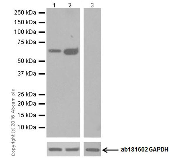 Western blot - Anti-Glutaminase C antibody [EPR19525] (ab202027)