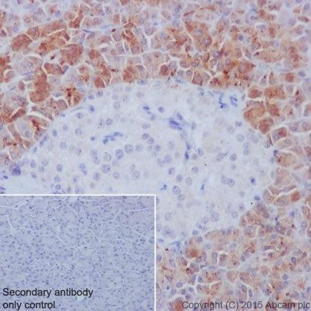 Immunohistochemistry (Formalin/PFA-fixed paraffin-embedded sections) - Anti-REG3A + REG3G antibody [EPRR18188] (ab202057)