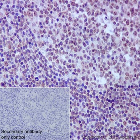 Immunohistochemistry (Formalin/PFA-fixed paraffin-embedded sections) - Anti-Rad51D antibody [EPR16205] (ab202063)