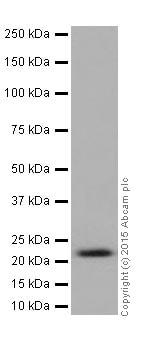 Western blot - Anti-HIKESHI antibody [EPR17761] (ab202065)