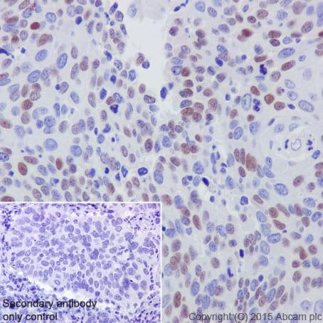 Immunohistochemistry (Formalin/PFA-fixed paraffin-embedded sections) - Anti-CDT1/DUP antibody [EPR17891] (ab202067)