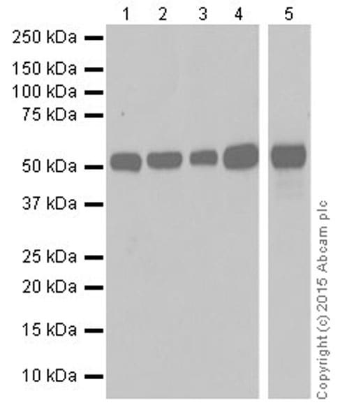 Western blot - Anti-Alanine Transaminase antibody [EPR19616] (ab202083)